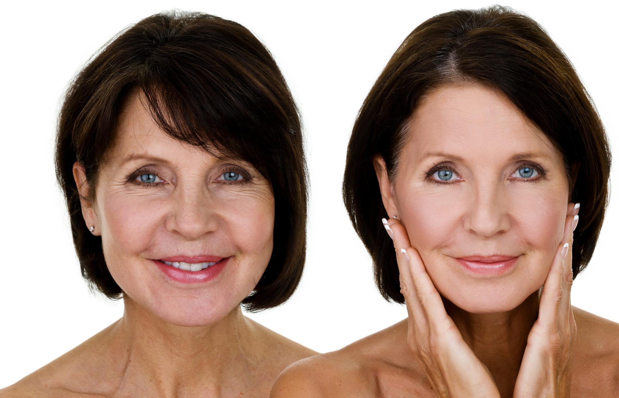 Cuidados com cirurgia plástica garantem bem-estar e satisfação